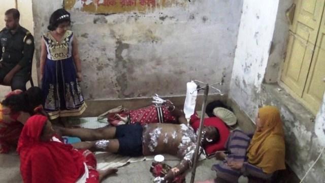 যশোরে জামাইকে পুড়িয়ে হত্যার চেষ্টা করল শ্বশুরবাড়ির লোকেরা