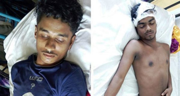 লক্ষ্মীপুরে ব্রাজিল-আর্জেন্টিনা সমর্থকদের সংঘর্ষ: নারীসহ আহত-৩
