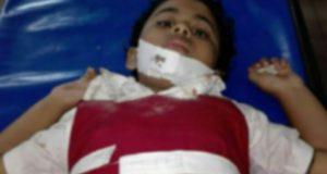 স্কুলে সিলিং ফ্যান পড়ে ২ শিক্ষার্থী আহত